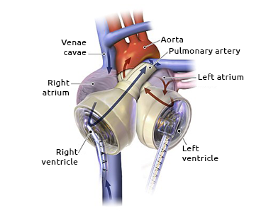 Diagram of an artificial heart. Source: Creative Commons Attribution - Share in the Same 3.0