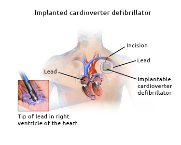 Implantable cardioverter defibrillator device. Creative Commons - Bruce Blaus