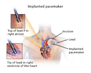 Diagram of an implanted pacemaker. Source: Creative Commons