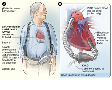 Left ventricular device. Source: Public domain - NIH